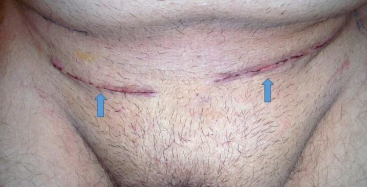 双侧开放性腹股沟疝修补术(蓝色箭头指着手术伤口)