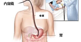 胃镜/内窥镜(Upper GI Endoscopy/OGDS)