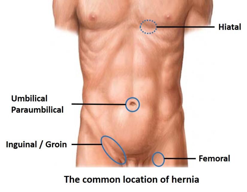 hernia location