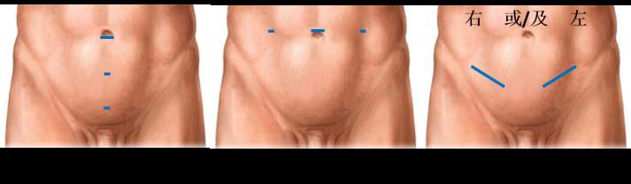 hernia repair mandarine.png