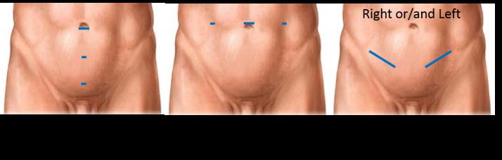 hernia repair pic