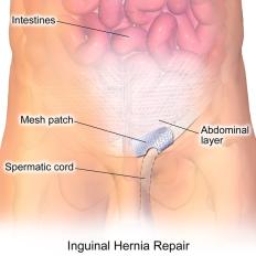 Inguinal-Hernia-Repair