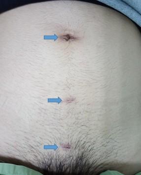 腹腔外腹膜前疝修补(TEP)手术后(蓝色箭头指着手术伤口)